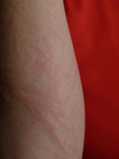 HOW I EASED MY MENOPAUSE ITCHY SKIN - Menopausal Maggie