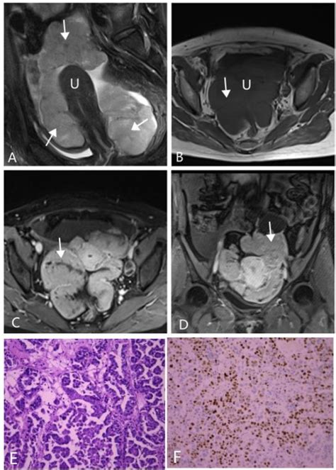 CT and MRI findings of type I and type II epithelial