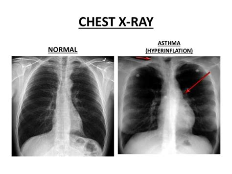 Normal Lung Function Vs Copd - Kronis l