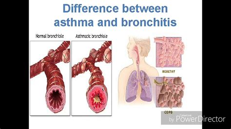 difference between asthma and bronchitisHD 1 - YouTube